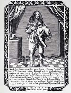 Early example of parasitic twins